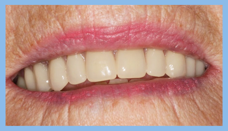 dentures london